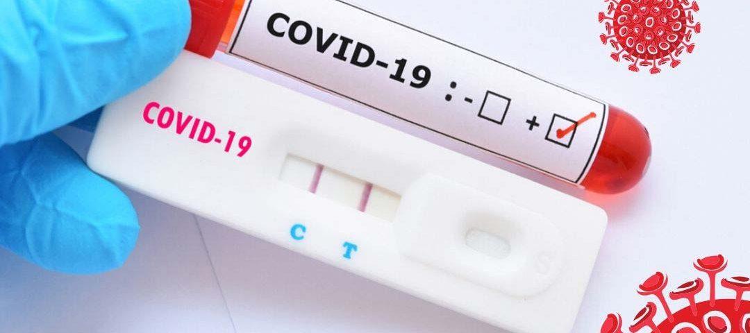 Ampliação de testes para Covid-19